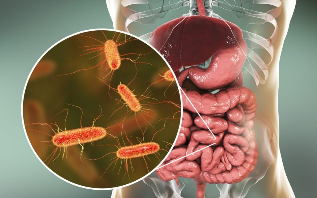 SIBO More Prevalent In Those With IBD