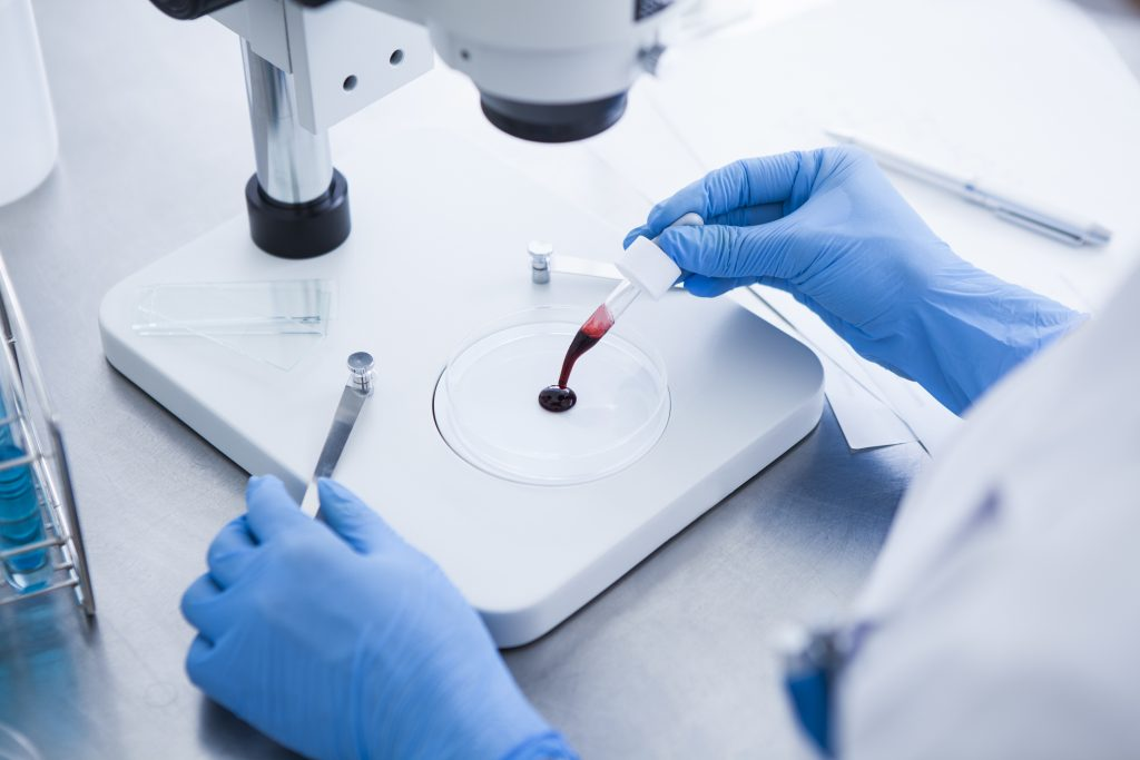 Non-Invasive Blood Assay Detects Early Colorectal Cancer